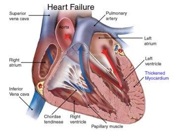 heartfailure2.jpg